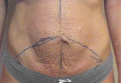 Abdominoplastia caso 116 antes