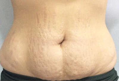 Abdominoplastia caso 5 antes