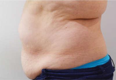 Abdominoplastia caso 7 antes