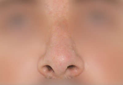 cirugia de nariz caso2 despues