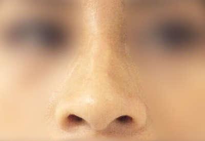 operacion de nariz caso4 antes