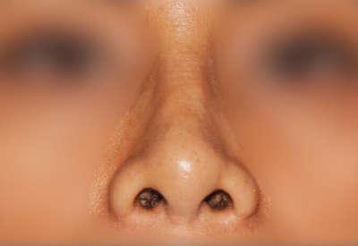 operacion de nariz caso4 despues