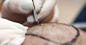 cuando crece el pelo tras el implante capilar
