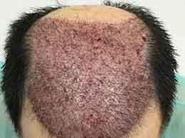 recuperacion dia a dia tras trasplante de pelo en Valencia con el Dr. Moltó