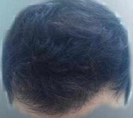 A los 6 meses del trasplante de pelo