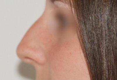 Antes de la intervención de nariz
