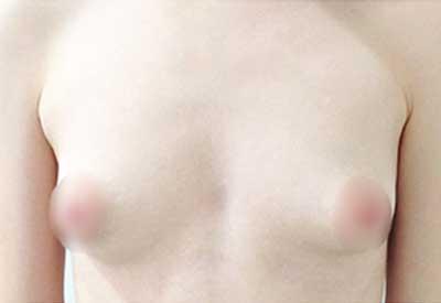imagen antes de la cirugía caso 13