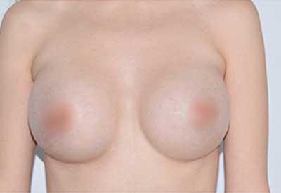 imagen despues de la cirugía caso 13