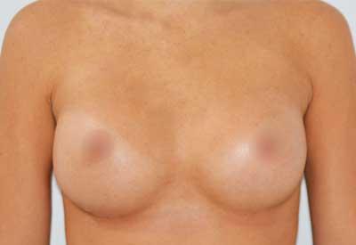 caso 15 después de la cirugía