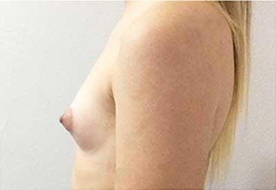 caso 20, antes de la cirugía