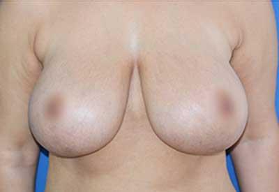 caso 25, antes de la cirugía