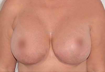 caso 25 después de la cirugía