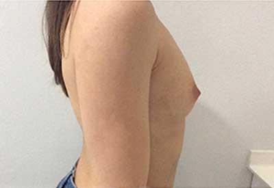 aumento de pecho dr. molto caso 38 antes