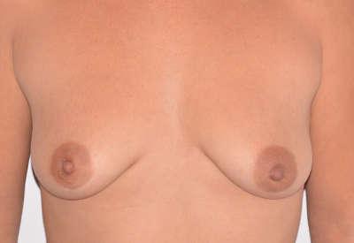 antes cirugia senos tub