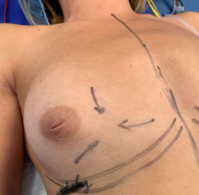 Marcado de incisiones en mamoplastia de aumento y eliminación de fibroadenoma