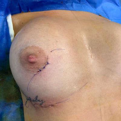incisiones de la mamoplastia con extraccion de fibroadenoma
