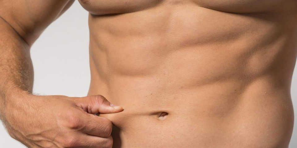 Abdominoplastia con marcacion adominal
