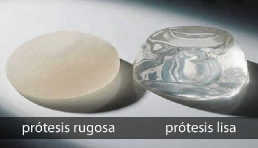 mejor protesis de pecho por su tipo de superficie: lisas