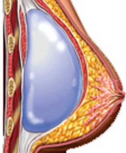 colocacion submuscular