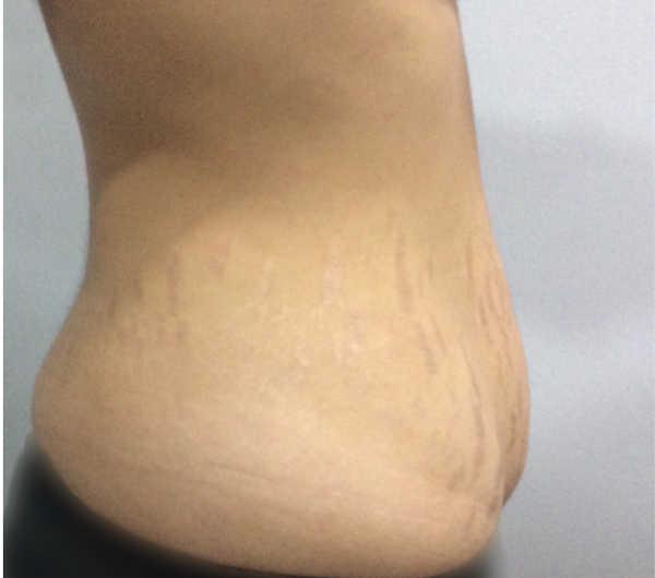 Visión lateral del abdomen antes de la cirugía
