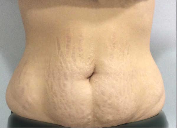 Antes de la cirugia