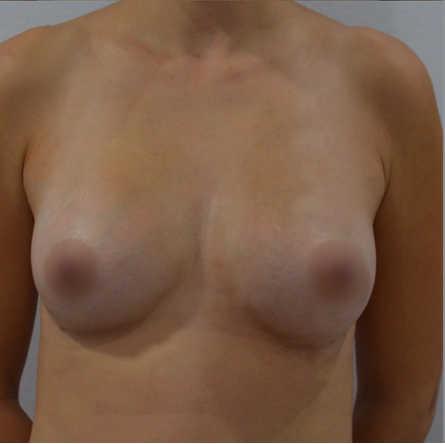 lipofilling senos despues