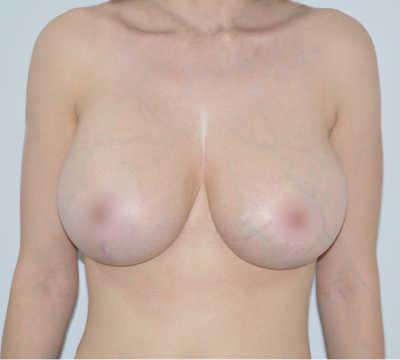 caso146 despues foto reduccion mamaria