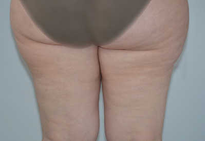 antes de liposuccion de piernas