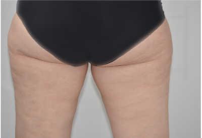despues de liposuccion de piernas