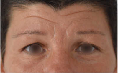 Foto antes blefaroplastia