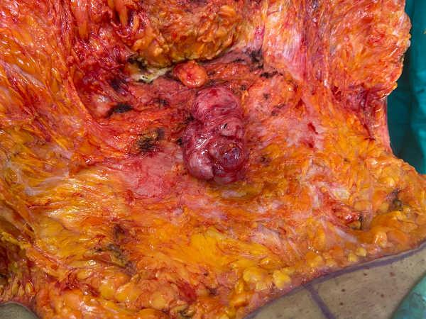 la ecografia para la abdominoplastia delata 2 hernias abdominales