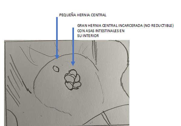 diagrama del caso de abdominoplastia con 2 hernias abdominales