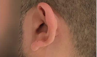 orejas-antes179