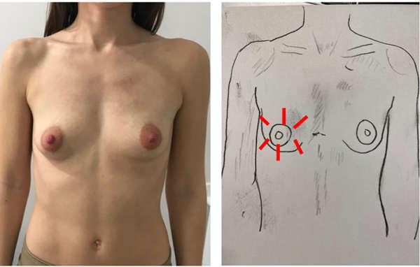 mama tubular tipo 3