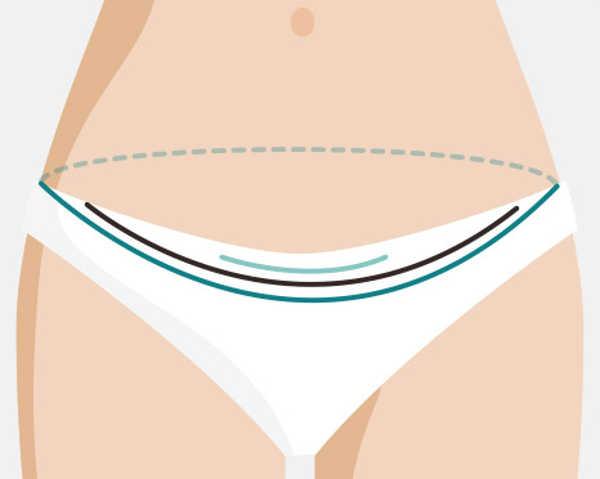 cicatriz en la abdominoplastia