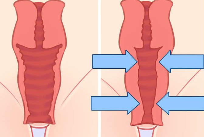 estrechamiento vaginal valencia y Gandia Dr. Molto