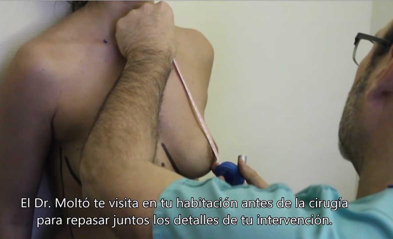 mastopexia valencia dr. Moltó: vídeo de la elevación de pecho